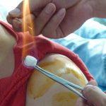 L'Acupuncture par l'aiguille de Feu